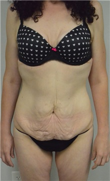 Body Contouring Before Photo by Jonathan Hall, MD; Stoneham, MA - Case 26902