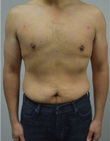 Male Breast Reduction After Photo by Jonathan Hall, MD; Stoneham, MA - Case 26913