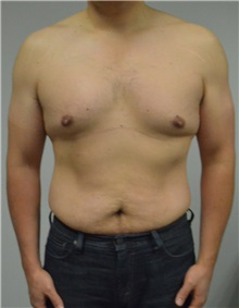 Male Breast Reduction Before Photo by Jonathan Hall, MD; Stoneham, MA - Case 26913