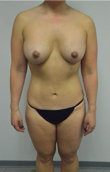Liposuction After Photo by Jonathan Hall, MD; Stoneham, MA - Case 26915