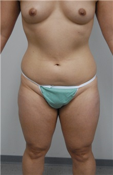 Liposuction Before Photo by Jonathan Hall, MD; Stoneham, MA - Case 26915
