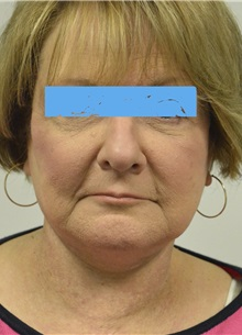 Facelift After Photo by Jonathan Hall, MD; Stoneham, MA - Case 27115