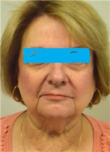 Facelift Before Photo by Jonathan Hall, MD; Stoneham, MA - Case 27115