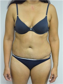 Tummy Tuck After Photo by Jonathan Hall, MD; Stoneham, MA - Case 27120