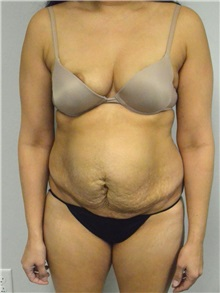 Tummy Tuck Before Photo by Jonathan Hall, MD; Stoneham, MA - Case 27120