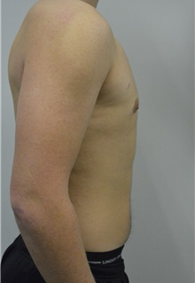 Male Breast Reduction After Photo by Jonathan Hall, MD; Stoneham, MA - Case 27183