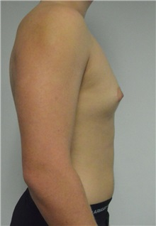 Male Breast Reduction Before Photo by Jonathan Hall, MD; Stoneham, MA - Case 27183