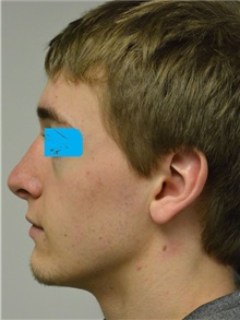 Rhinoplasty After Photo by Jonathan Hall, MD; Stoneham, MA - Case 27218