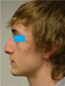 Rhinoplasty Before Photo by Jonathan Hall, MD; Stoneham, MA - Case 27218