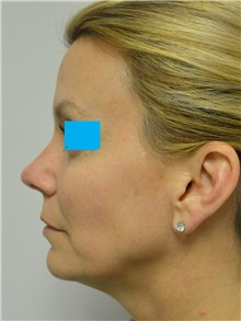 Rhinoplasty After Photo by Jonathan Hall, MD; Stoneham, MA - Case 27241