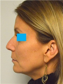 Rhinoplasty Before Photo by Jonathan Hall, MD; Stoneham, MA - Case 27241