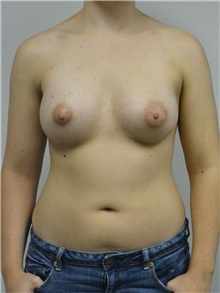Breast Augmentation After Photo by Jonathan Hall, MD; Stoneham, MA - Case 27407