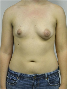 Breast Augmentation Before Photo by Jonathan Hall, MD; Stoneham, MA - Case 27407