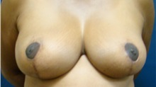 Breast Reduction After Photo by Noel Natoli, MD, FACS; East Hills, NY - Case 30420