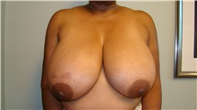 Breast Reduction Before Photo by Noel Natoli, MD, FACS; East Hills, NY - Case 30420