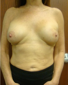 Breast Reconstruction After Photo by Noel Natoli, MD, FACS; Garden City, NY - Case 30421