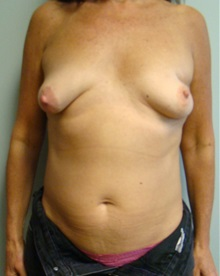 Breast Reconstruction Before Photo by Noel Natoli, MD, FACS; Garden City, NY - Case 30421