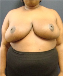 Breast Reduction After Photo by Noel Natoli, MD, FACS; East Hills, NY - Case 30424