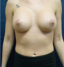 Breast Augmentation After Photo by Noel Natoli, MD, FACS; Garden City, NY - Case 30428