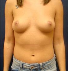 Breast Augmentation Before Photo by Noel Natoli, MD, FACS; Garden City, NY - Case 30428