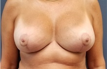 Breast Reconstruction After Photo by Noel Natoli, MD, FACS; East Hills, NY - Case 35248