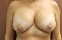 Breast Reconstruction Before Photo by Noel Natoli, MD, FACS; East Hills, NY - Case 35248