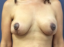 Breast Reconstruction After Photo by Noel Natoli, MD, FACS; East Hills, NY - Case 36223