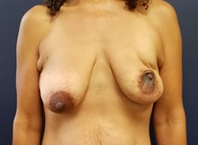 Breast Reconstruction Before Photo by Noel Natoli, MD, FACS; East Hills, NY - Case 36223