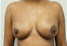 Breast Reconstruction After Photo by Noel Natoli, MD, FACS; East Hills, NY - Case 36227