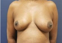 Breast Reconstruction Before Photo by Noel Natoli, MD, FACS; East Hills, NY - Case 36227