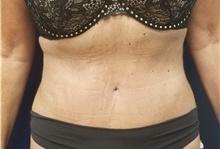 Tummy Tuck After Photo by Noel Natoli, MD, FACS; East Hills, NY - Case 41901