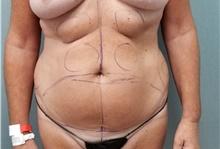 Tummy Tuck Before Photo by Noel Natoli, MD, FACS; East Hills, NY - Case 41901