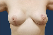 Breast Reconstruction After Photo by Noel Natoli, MD, FACS; East Hills, NY - Case 41902