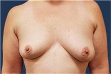 Breast Reconstruction Before Photo by Noel Natoli, MD, FACS; East Hills, NY - Case 41902