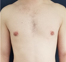 Male Breast Reduction After Photo by Noel Natoli, MD, FACS; East Hills, NY - Case 41908