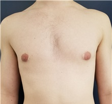 Male Breast Reduction Before Photo by Noel Natoli, MD, FACS; East Hills, NY - Case 41908