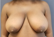 Breast Reduction Before Photo by Noel Natoli, MD, FACS; East Hills, NY - Case 43310
