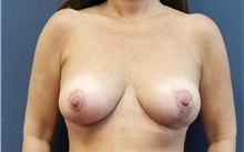 Breast Reduction After Photo by Noel Natoli, MD, FACS; East Hills, NY - Case 43345