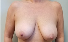 Breast Reduction Before Photo by Noel Natoli, MD, FACS; East Hills, NY - Case 43345