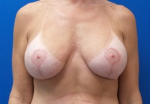 Breast Lift After Photo by Michael Fallucco, MD, FACS; Jacksonville, FL - Case 30549