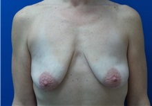 Breast Lift Before Photo by Michael Fallucco, MD, FACS; Jacksonville, FL - Case 30549