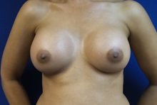 Breast Augmentation After Photo by Michael Fallucco, MD, FACS; Jacksonville, FL - Case 30550