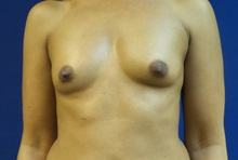 Breast Augmentation Before Photo by Michael Fallucco, MD, FACS; Jacksonville, FL - Case 30550