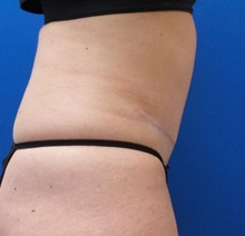 Tummy Tuck After Photo by Michael Fallucco, MD, FACS; Jacksonville, FL - Case 30580
