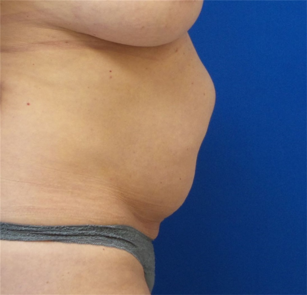 Tummy Tuck Before And After Photos By Michael Fallucco Md Facs