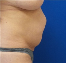 Tummy Tuck Before Photo by Michael Fallucco, MD, FACS; Jacksonville, FL - Case 30580