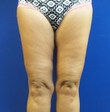 Thigh Lift After Photo by Michael Fallucco, MD, FACS; Jacksonville, FL - Case 30628
