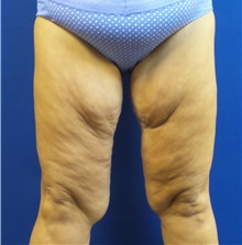 Thigh Lift Before Photo by Michael Fallucco, MD, FACS; Jacksonville, FL - Case 30628