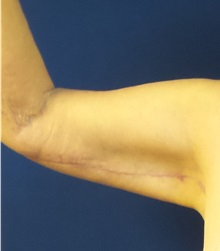 Arm Lift After Photo by Michael Fallucco, MD, FACS; Jacksonville, FL - Case 30634
