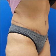 Tummy Tuck After Photo by Michael Fallucco, MD, FACS; Jacksonville, FL - Case 30984